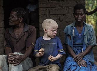 Caccia agli albini in Malawi alla vigilia del voto