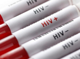 HIV, in Italia i più contagiati rimangono gli omosessuali