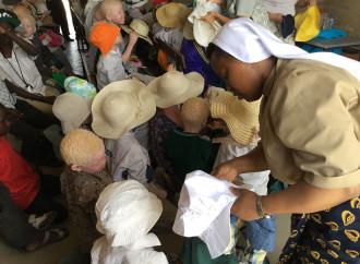 Quelle suore che salvano gli albini dagli stregoni
