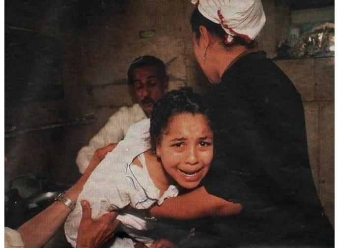 Mutilazioni genitali femminili