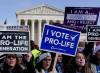 Stati e città vietano l'aborto: tornare indietro si può